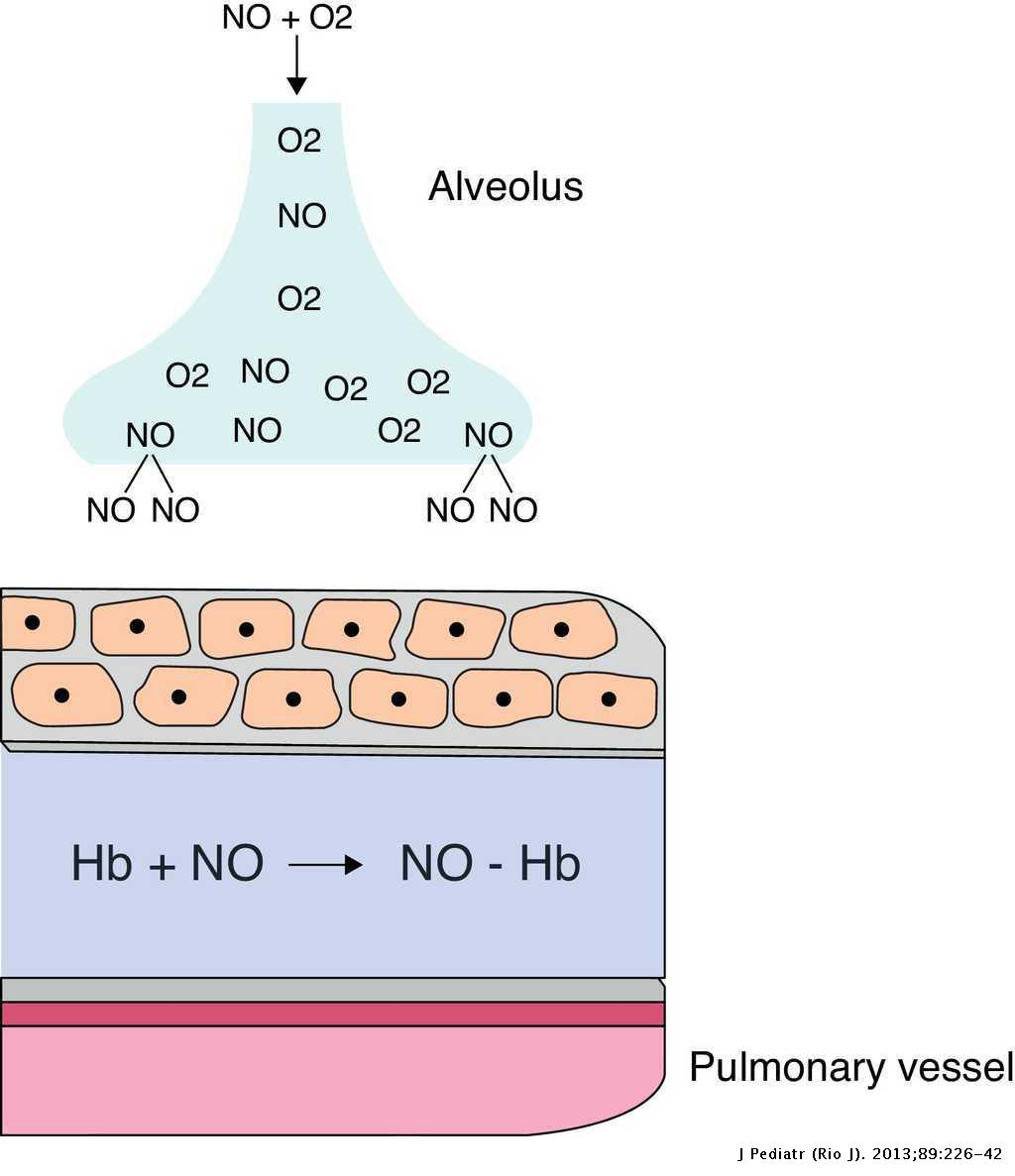 Persistent pulmonary hypertension of the newborn: recent