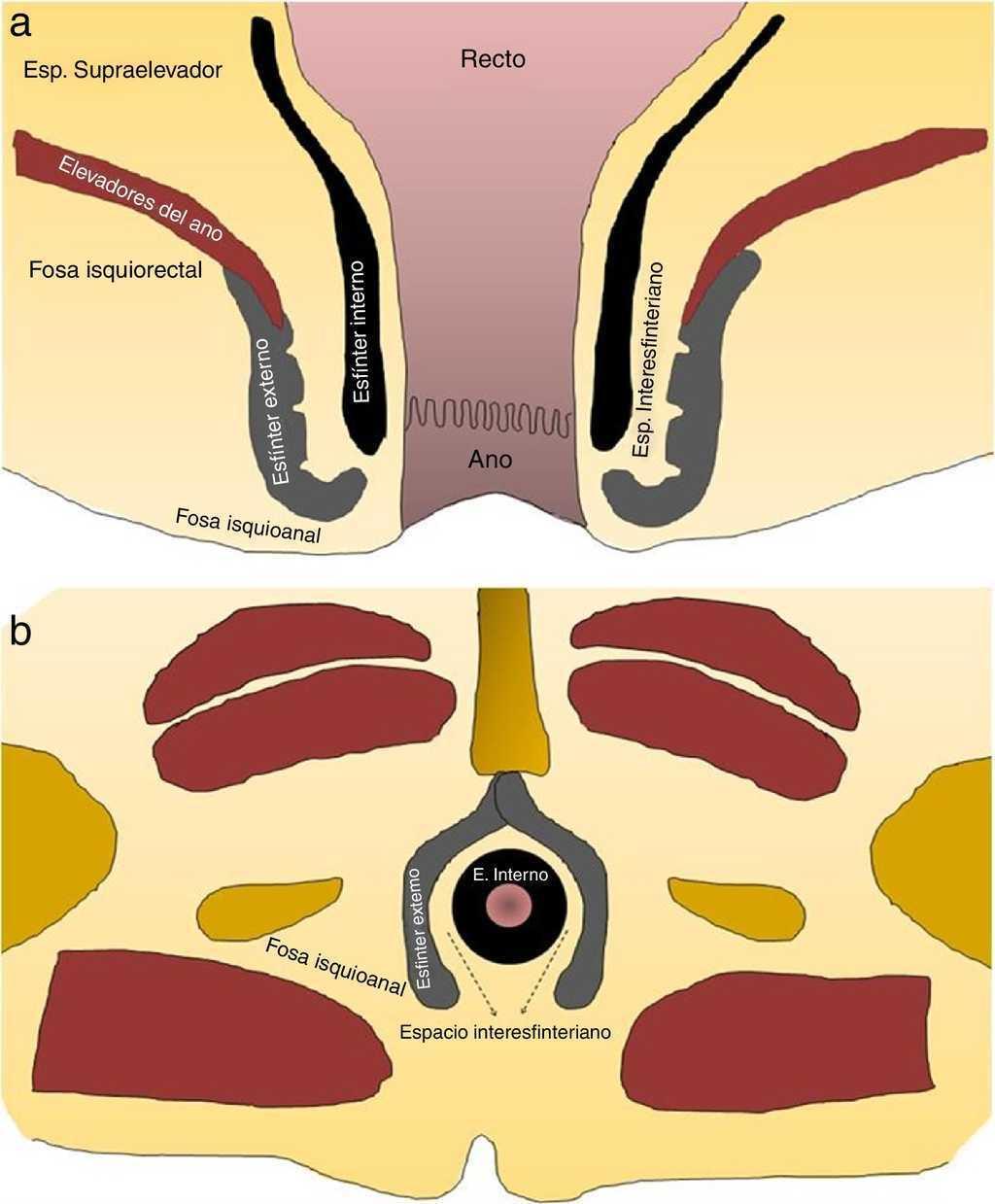 Fístulas perianales: caracterización con resonancia magnética ...