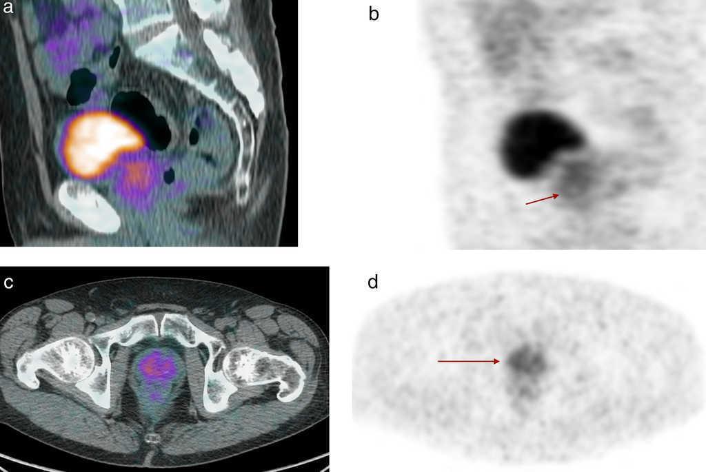 Resultado de imagen de La técnica combinada PET/CT