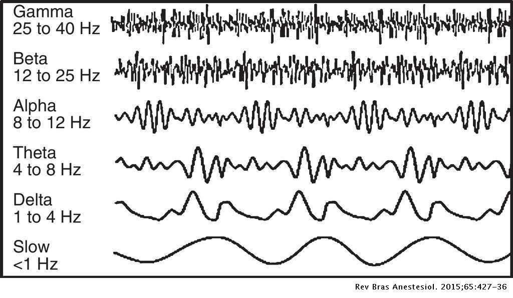 Brazilian consensus on anesthetic depth monitoring