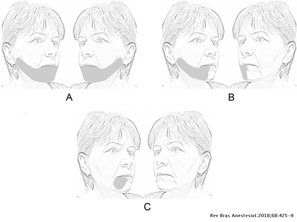 Bilateral mandibular nerve injury following mask ventilation: a case
