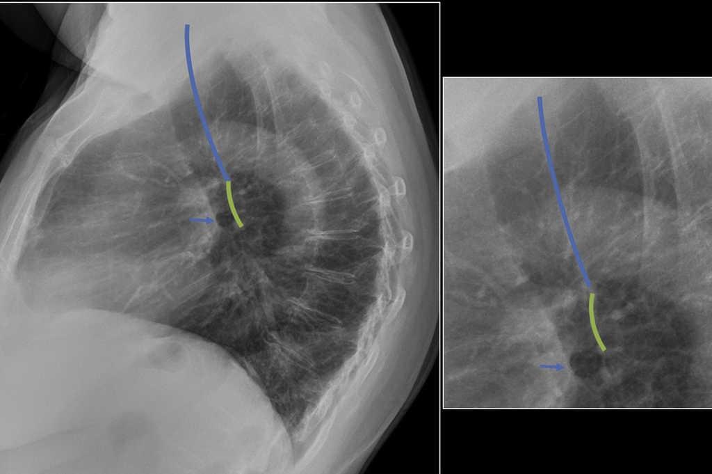 Enfoque inicial de las alteraciones mediastinales: revisión de sus ...
