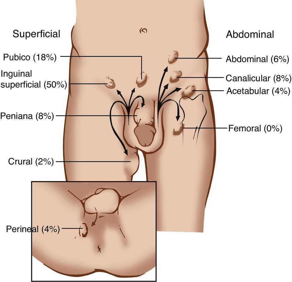 Dislocación testicular: reporte de un caso y revisión de la ...