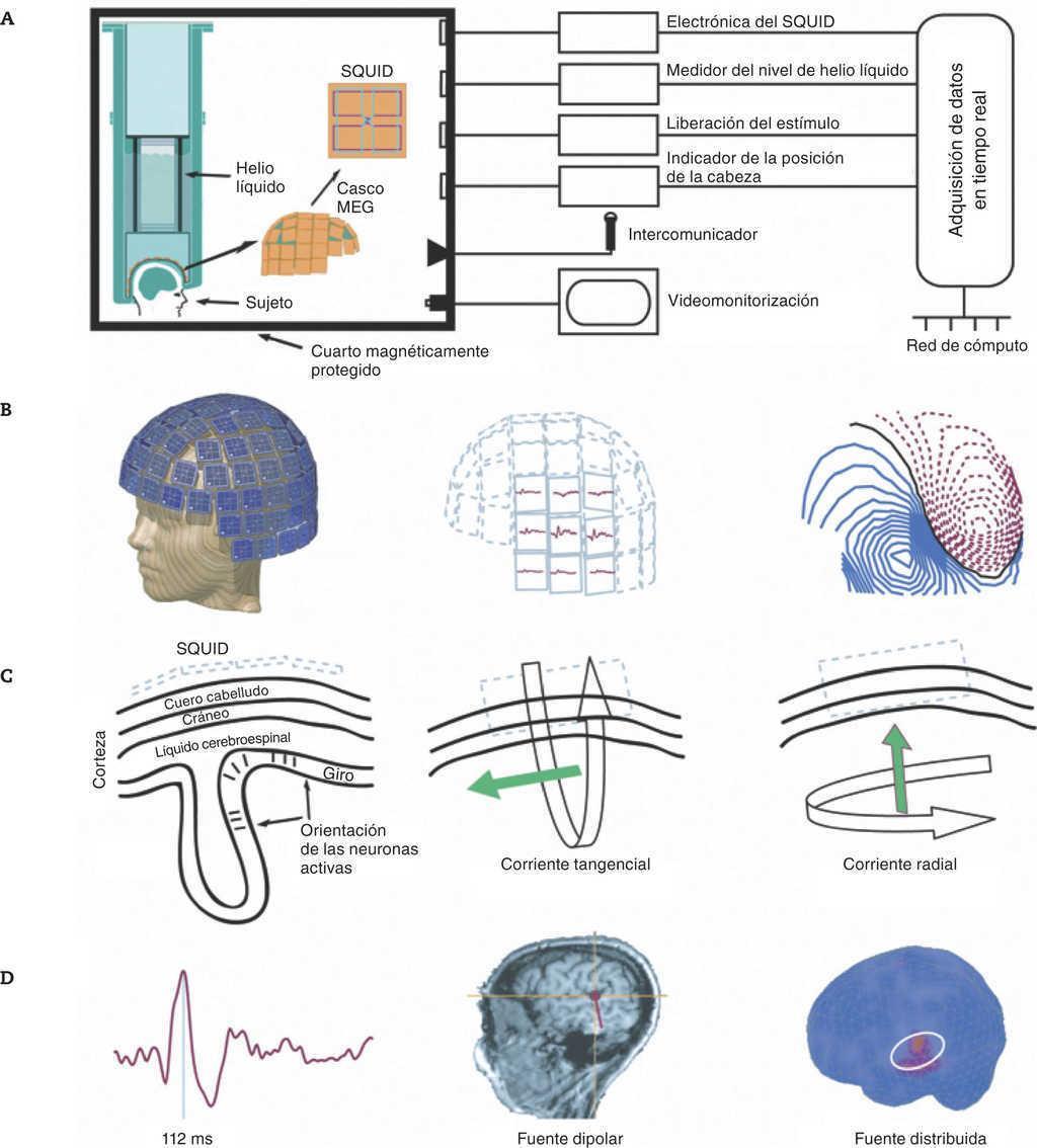 Magnetoencefalografía: mapeo de la dinámica espaciotemporal de la ...
