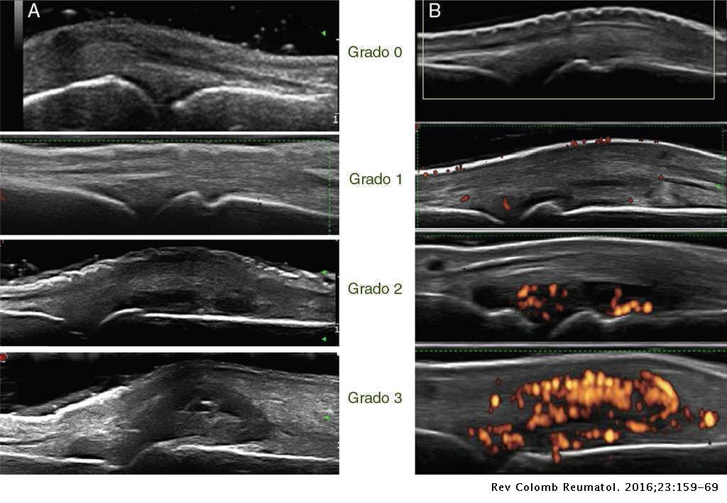artritis reumatoide nivel 1