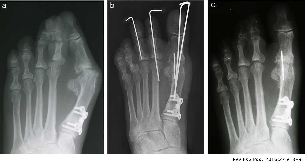 Use of 1st metatarsophalangeal joint fusion for repair of geriatric