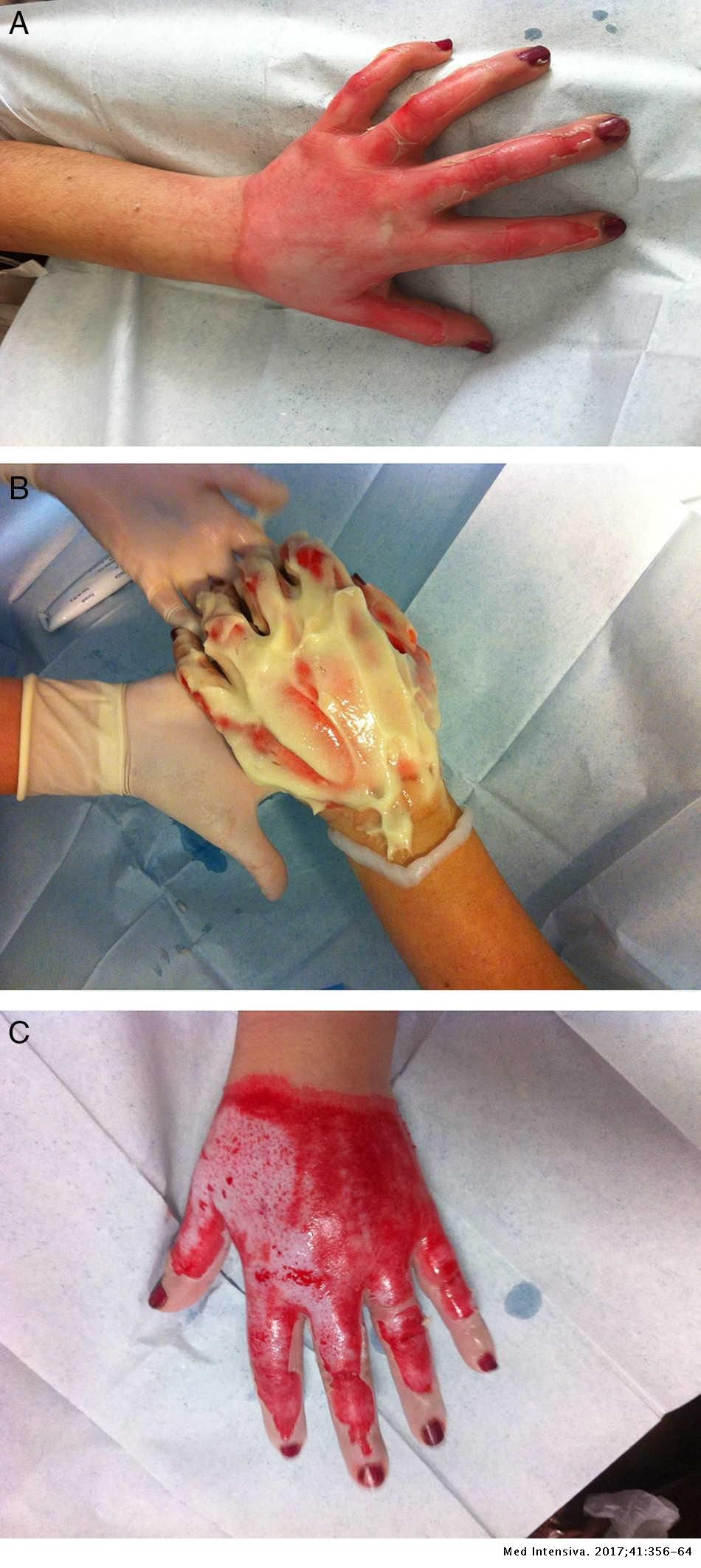 Surgical treatment and management of the severely burn