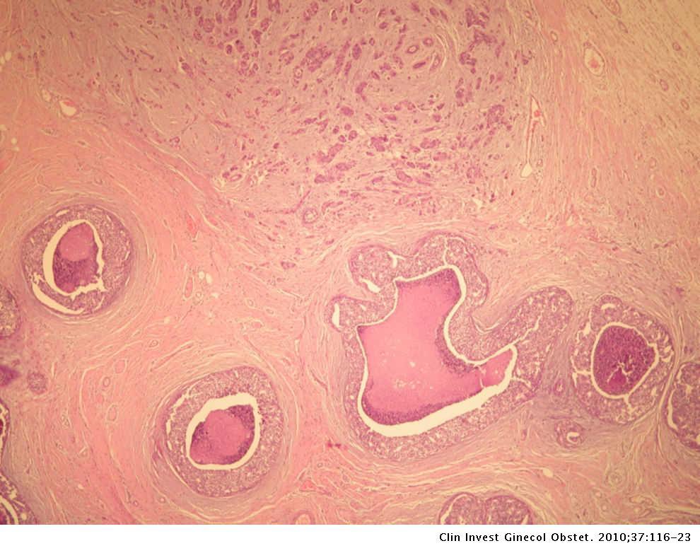 cancer mamar g3)