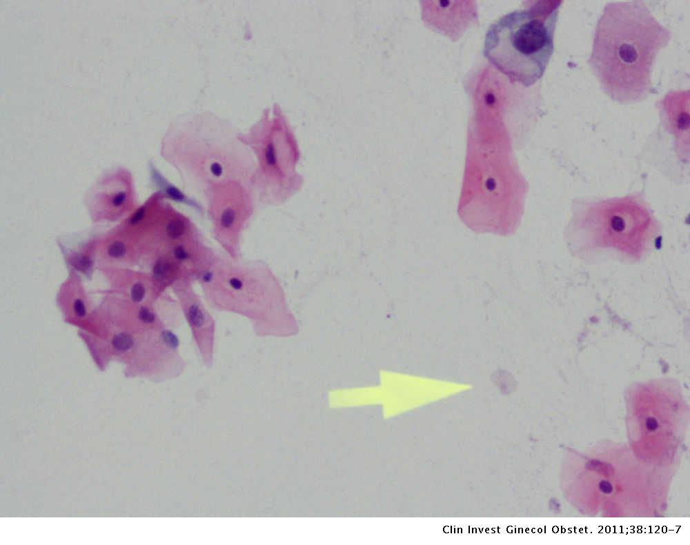 Trichomonas a citológiai kenetben