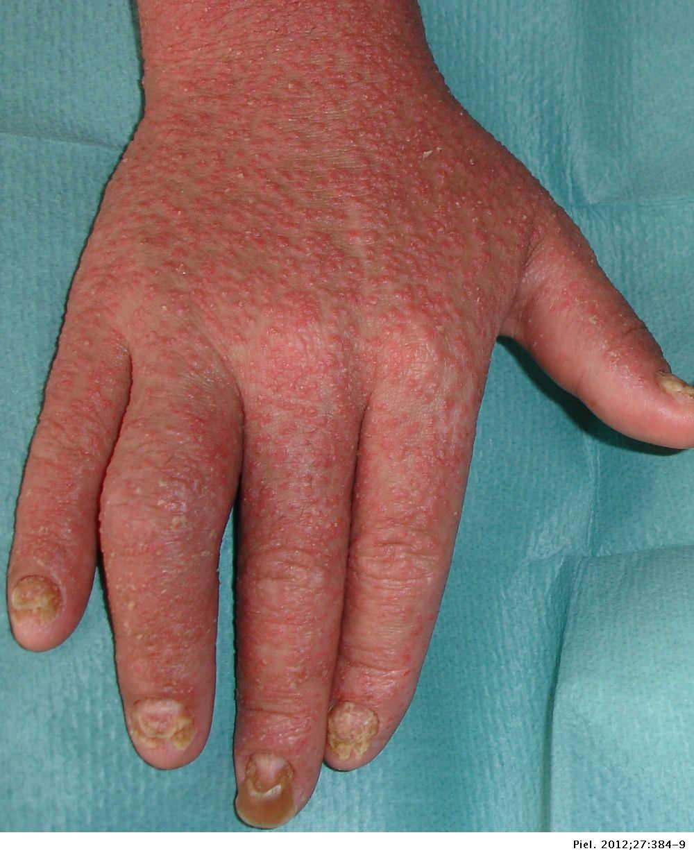 gyulladásgátló a vállízület artrózisában térdízületi betegség jelentés