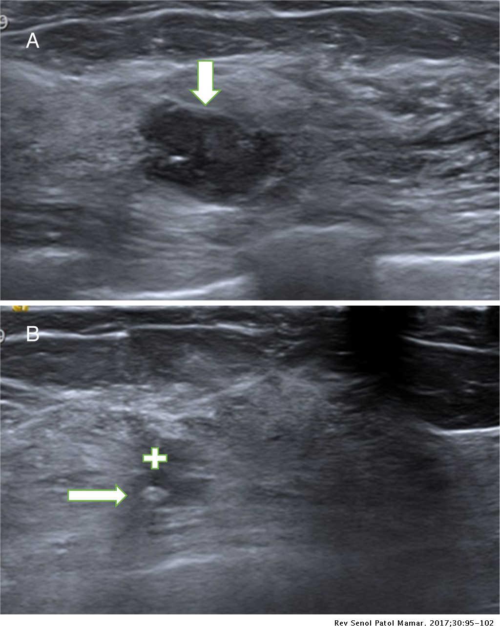 papiloma intraductal biopsia)