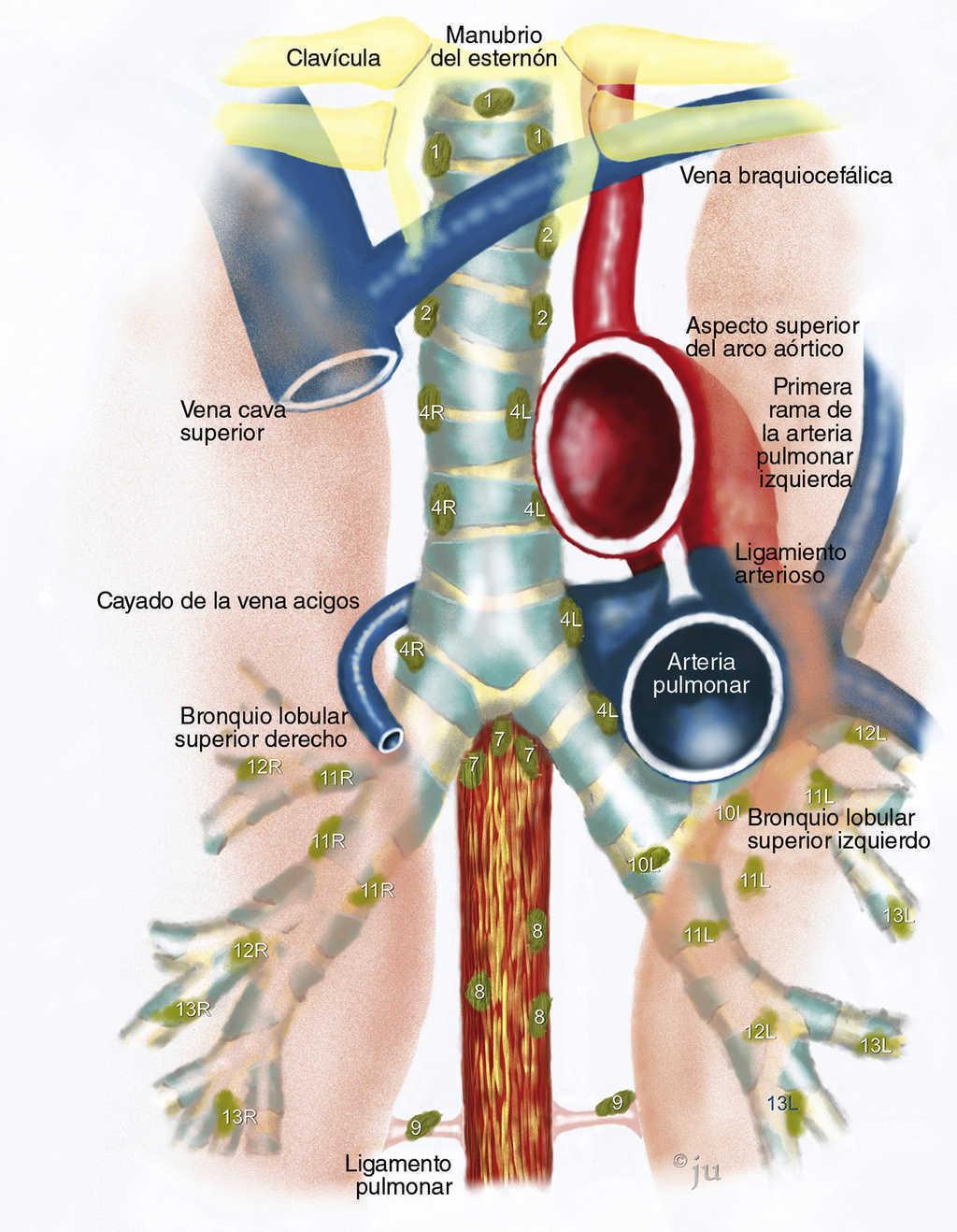 Estadificación del cáncer de pulmón mediante punción aspirativa con ...