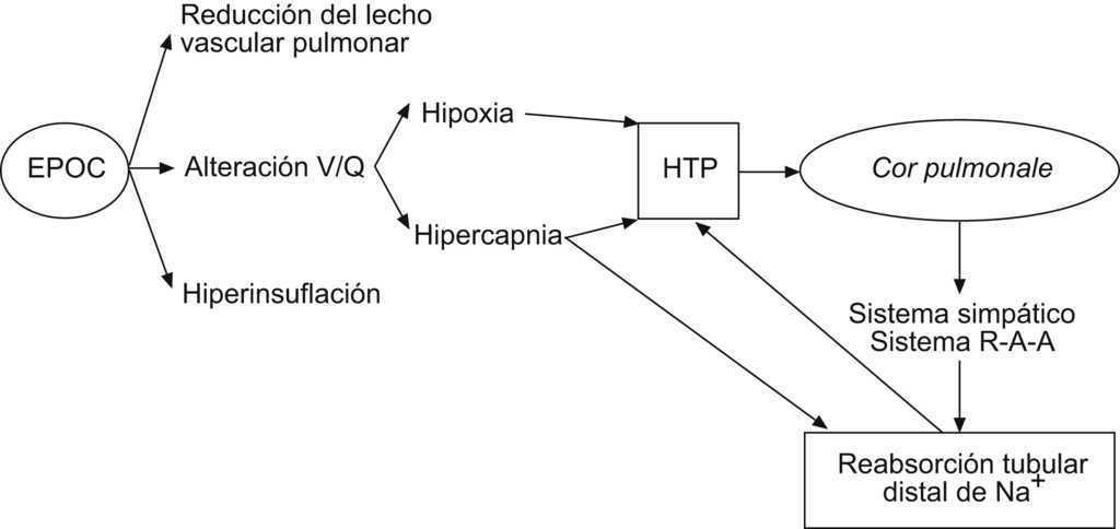 Diferencia entre hipertensión pulmonar e insuficiencia cardíaca congestiva