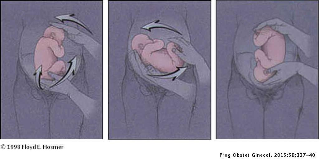 Versión cefálica externa (actualizado marzo de 2014) | Progresos ...
