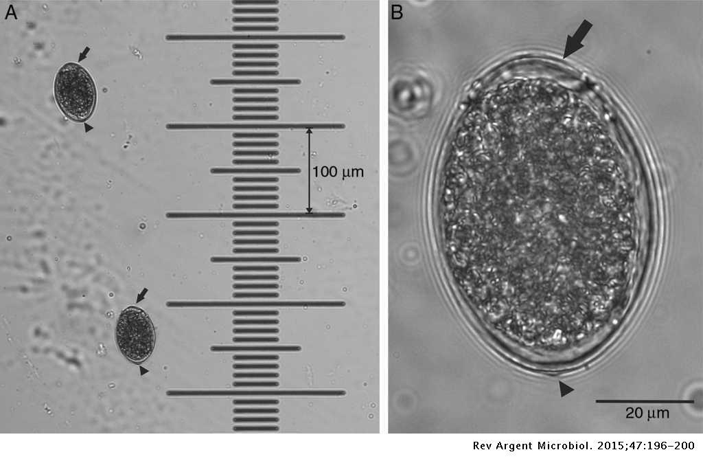 taxonómia diphildobothriasis
