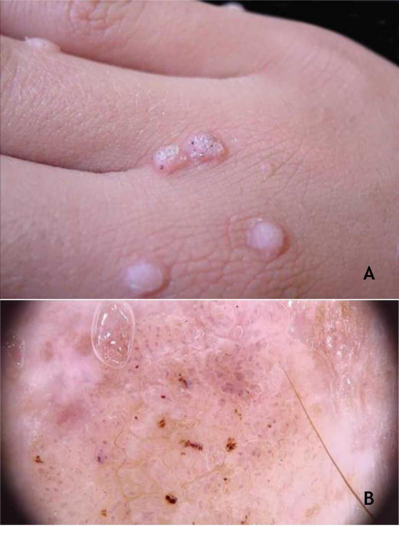 Pave papillomavirus episteme. Hpv vaccine linked to cancer