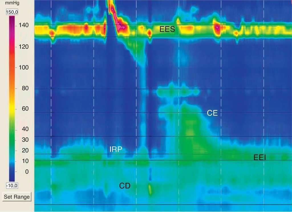 Diagnóstico de hernia hiatal por topografía de la presión esofágica ...