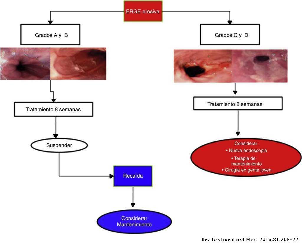 Diagnostico Y Tratamiento De La Enfermedad Por Reflujo
