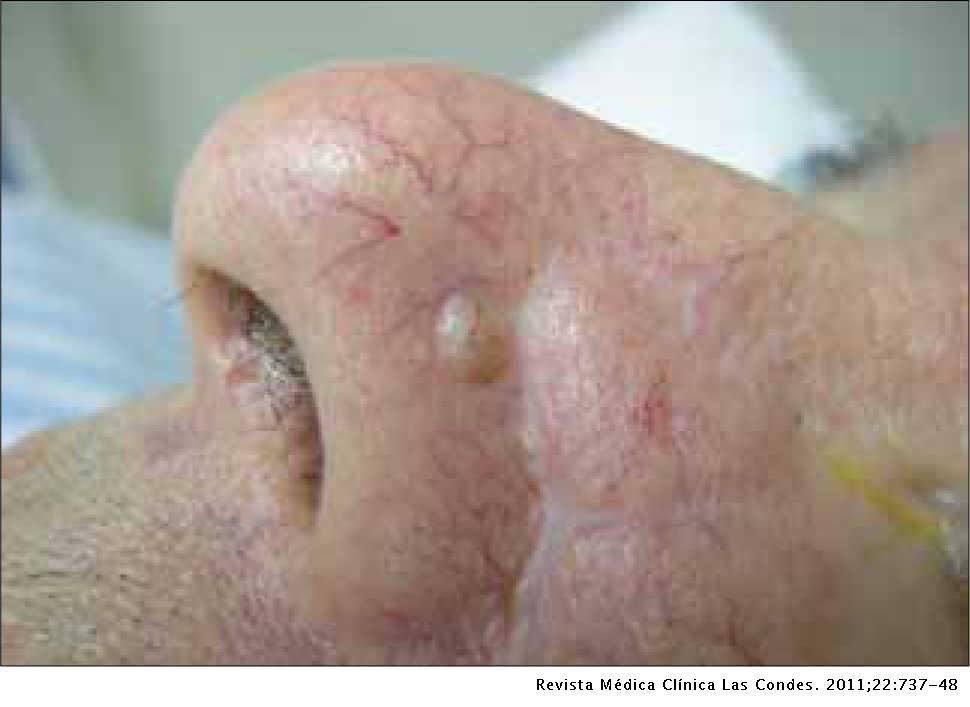 cancer epitelial de piel tratamentul viermei de tâmplă