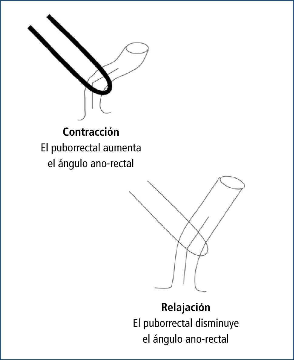 Enfermedades del piso pelviano y del esfínter anal: perspectiva de ...
