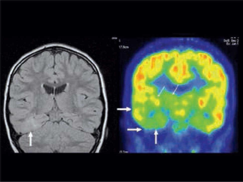 Rol del PET/CT en epilepsia   Revista Médica Clínica Las Condes