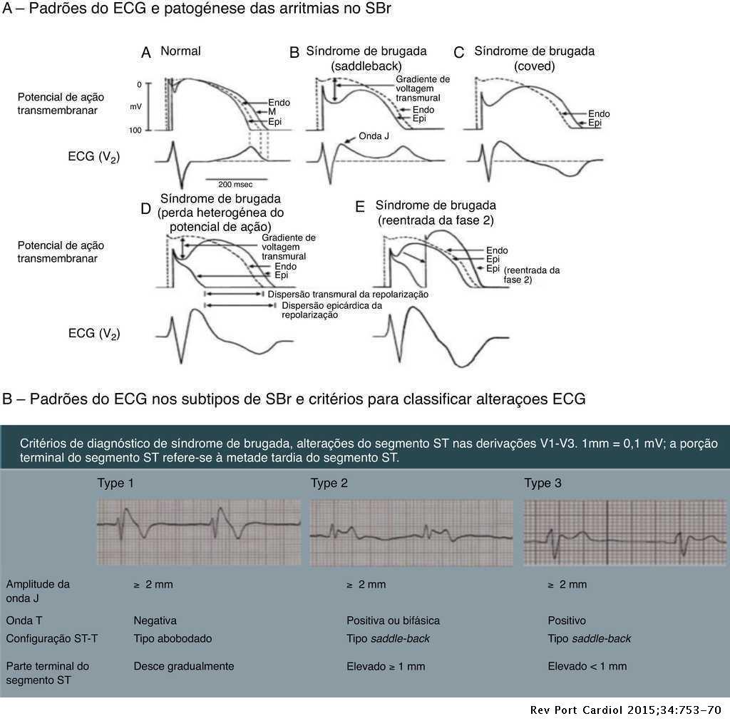 Alterações Eletrocardiográficas Benignas E Patológicas Em