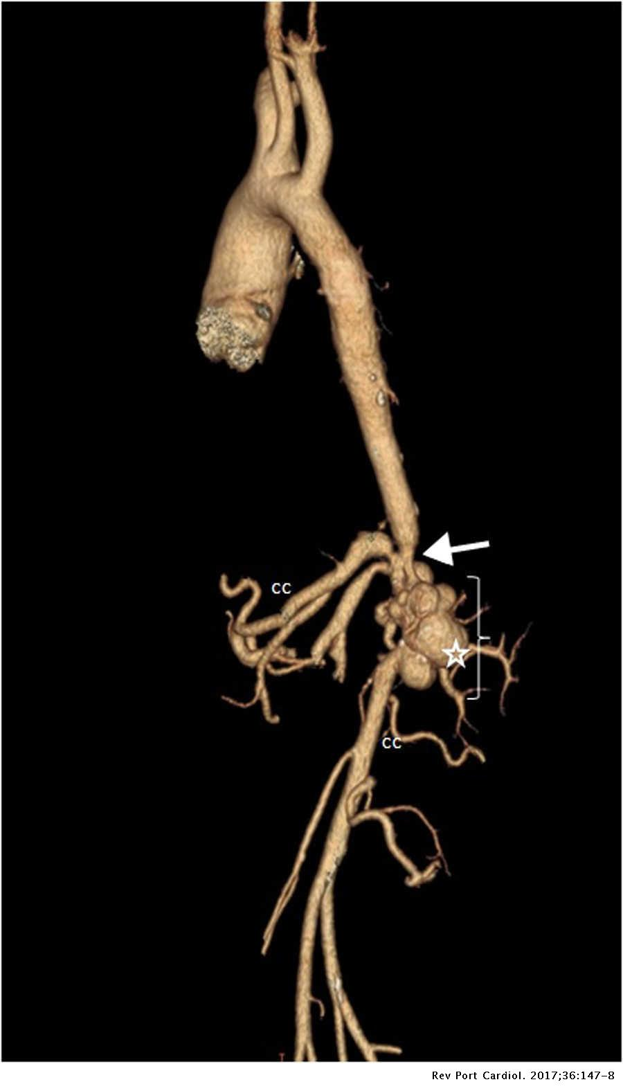 Mid-aortic syndrome in a patient with neurofibromatosis ...