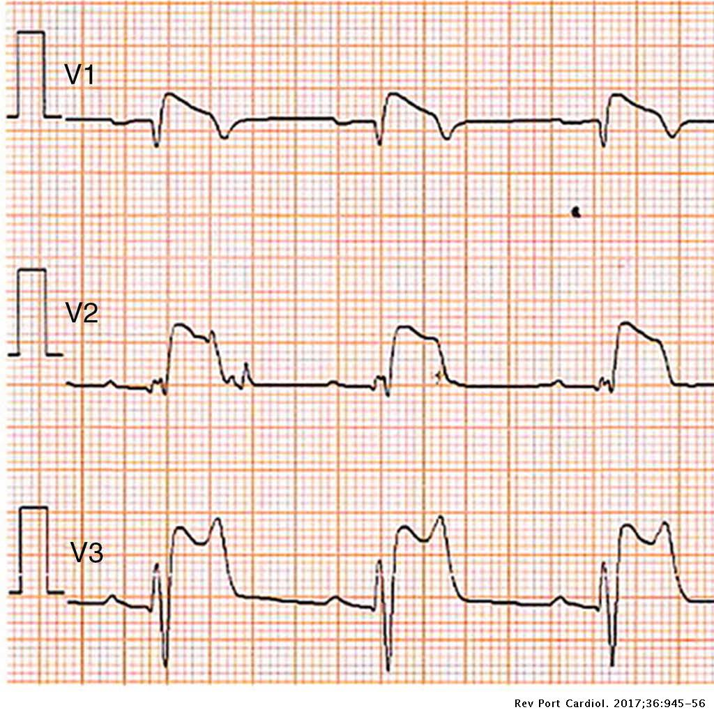 Induced Brugada syndrome: Possible sources of