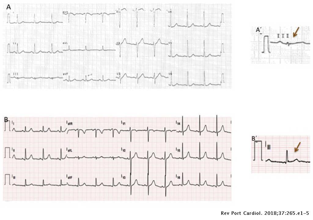 Eletrocardiograma de 12 derivações