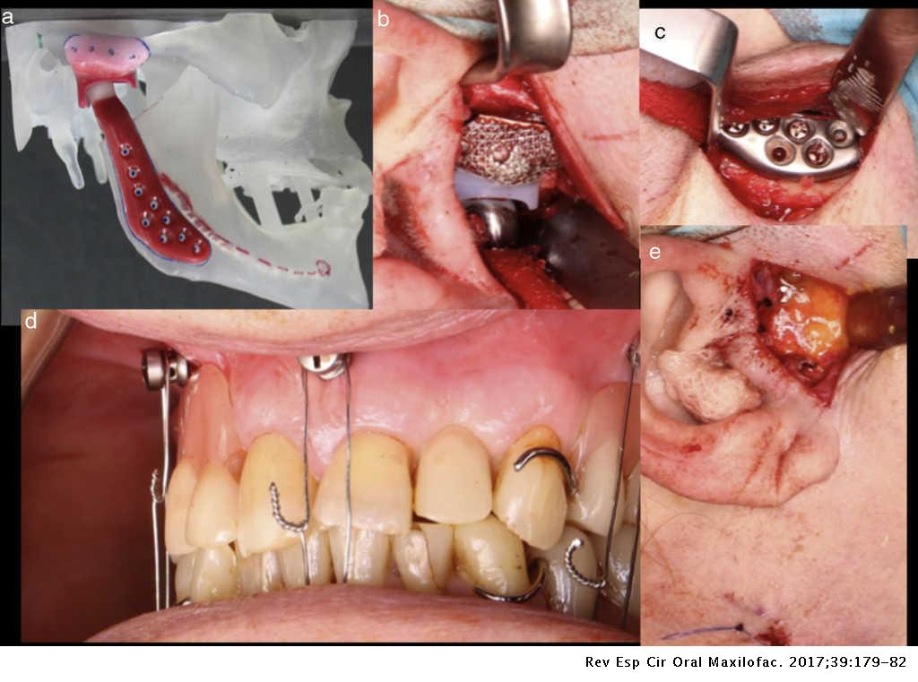 Management Of An Infected Temporomandibular Joint Prosthesis And