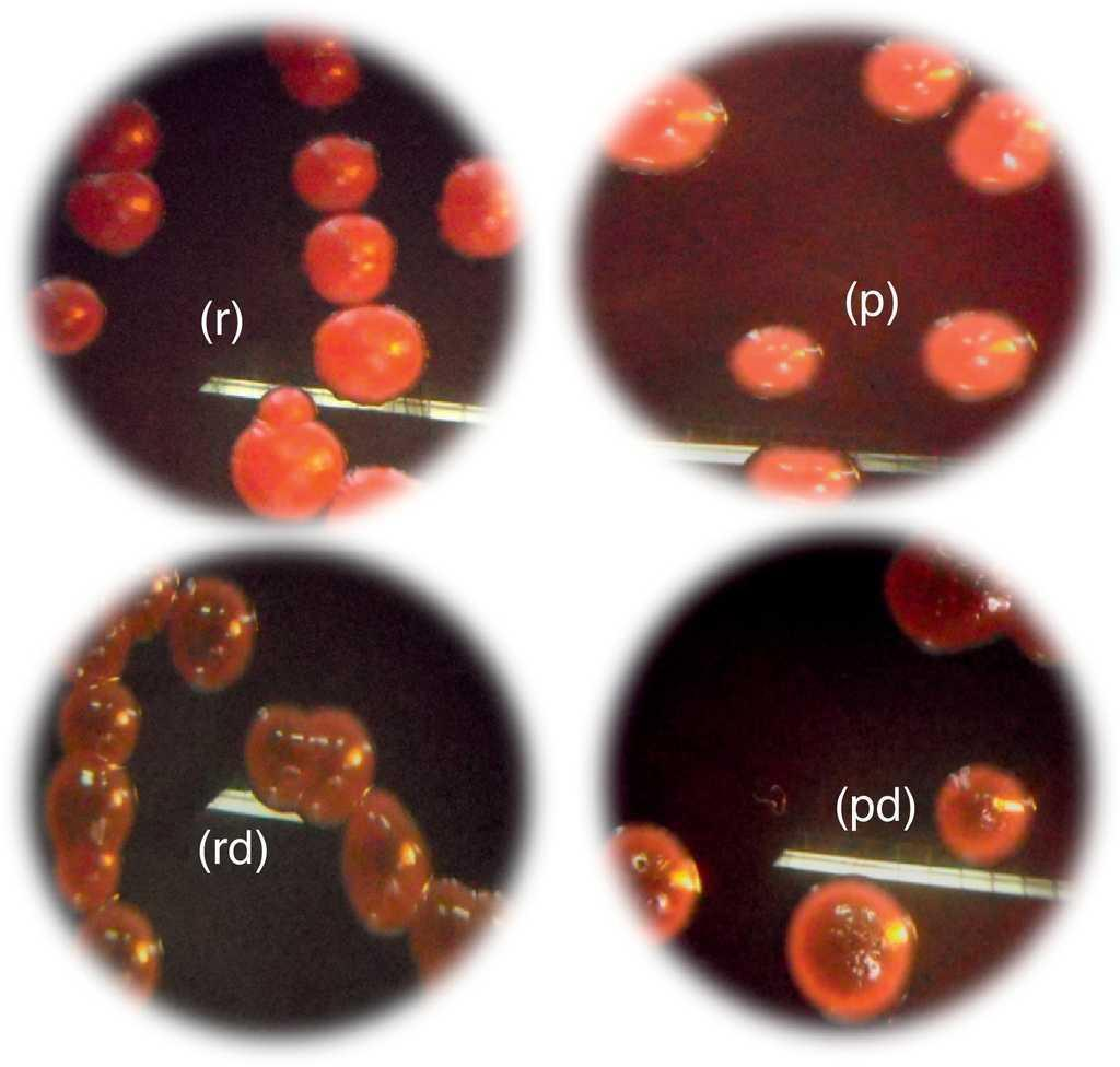 Phenotypic Characterization And Adhesive Properties Of Vaginal Bio Ball Isi 50 Morphotypes Candida Strains Based On The Colorimetric Scale Obtained Congo Red Agar