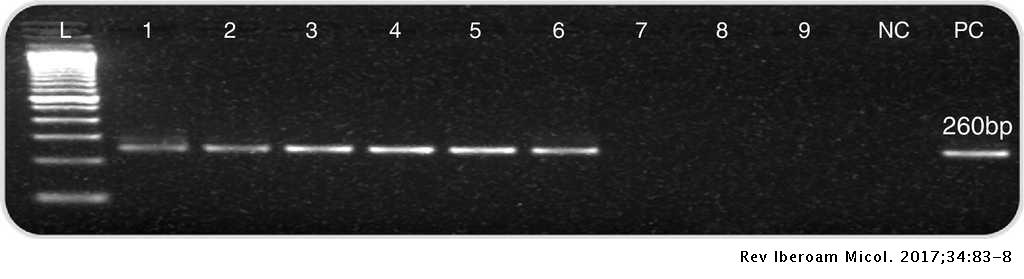 Detection of Pneumocystis jirovecii by nested PCR in HIV