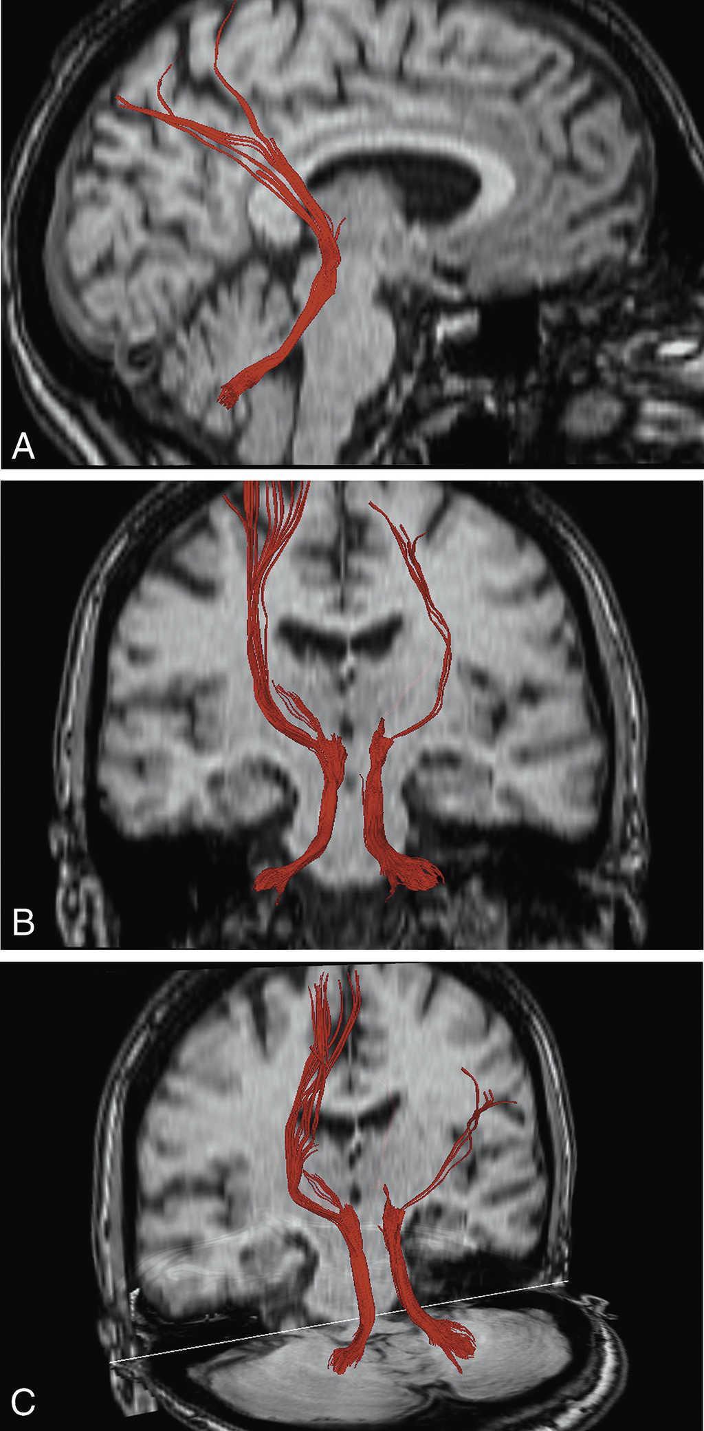 Anatomía de los pedúnculos cerebelosos en 3D basada en ...