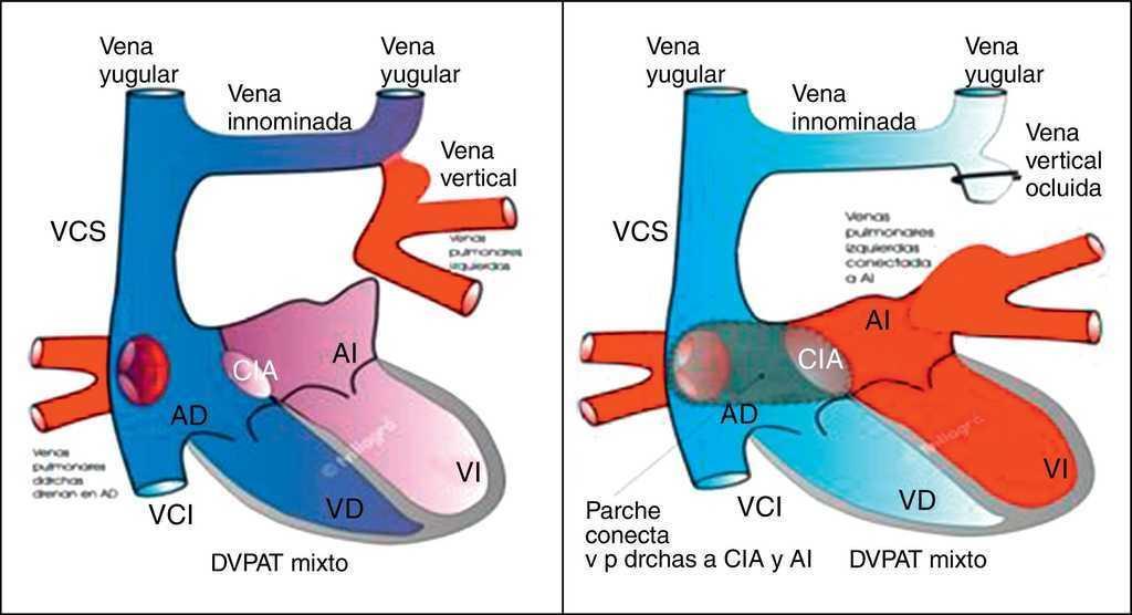 Drenaje venosa pulmonar anómalo total. Técnicas y resultados ...