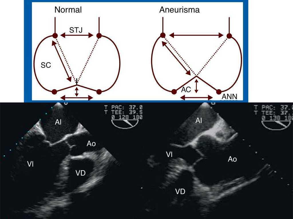 Valoración ecocardiográfica de la anatomía funcional de la ...