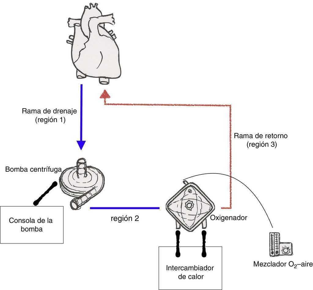 Circuito Neumatico Basico : Asistencia mecánica circulatoria de corta duración cirugía
