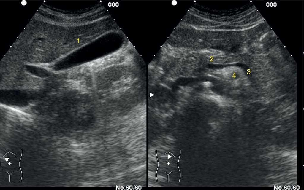 Anatomía ecográfica abdominal normal. Sistemática de exploración ...