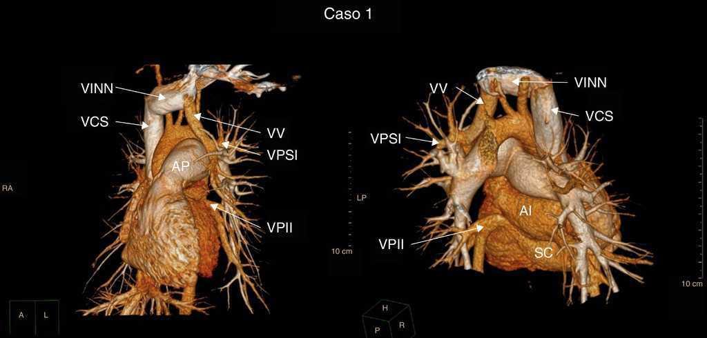 Conexión anómala parcial de venas pulmonares, un reto diagnóstico en ...