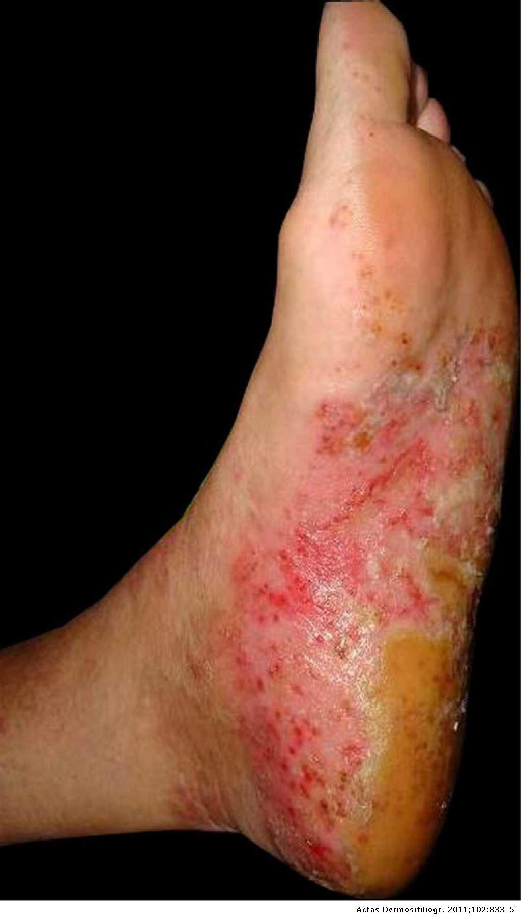 pustular psoriasis foot treatment