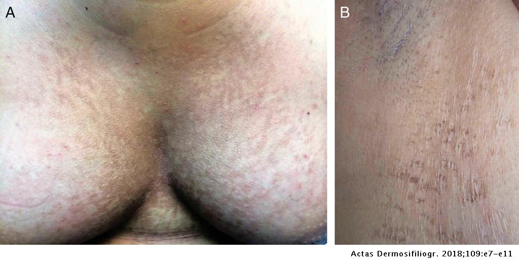 hypopigmented confluent and reticulated papillomatosis