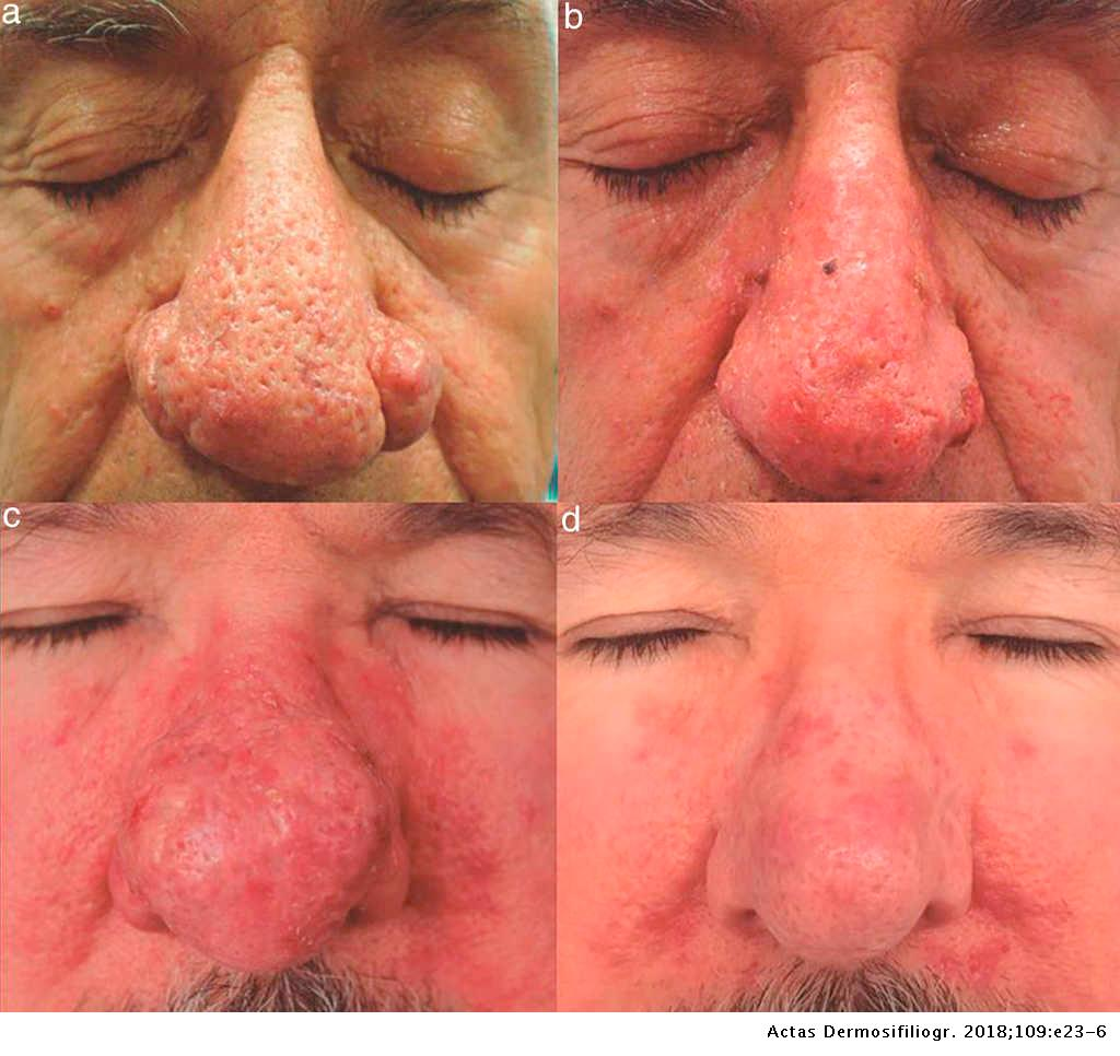 Electrosurgery For The Treatment Of Moderate Or Severe Rhinophyma Actas Dermo Sifiliograficas English Edition
