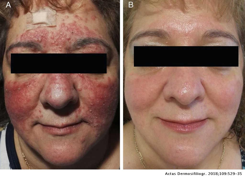 Papulopustular Rosacea Response To Treatment With Oral
