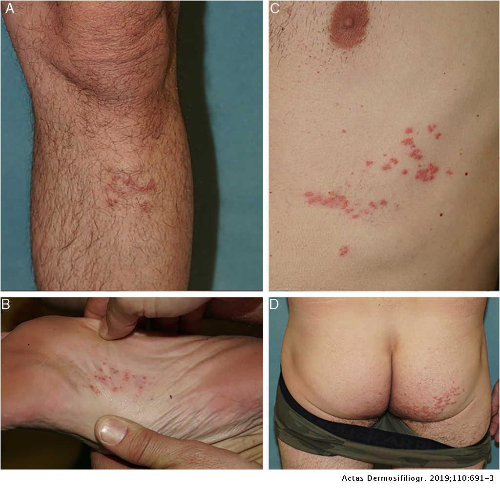 erwachsene plantar dermatose