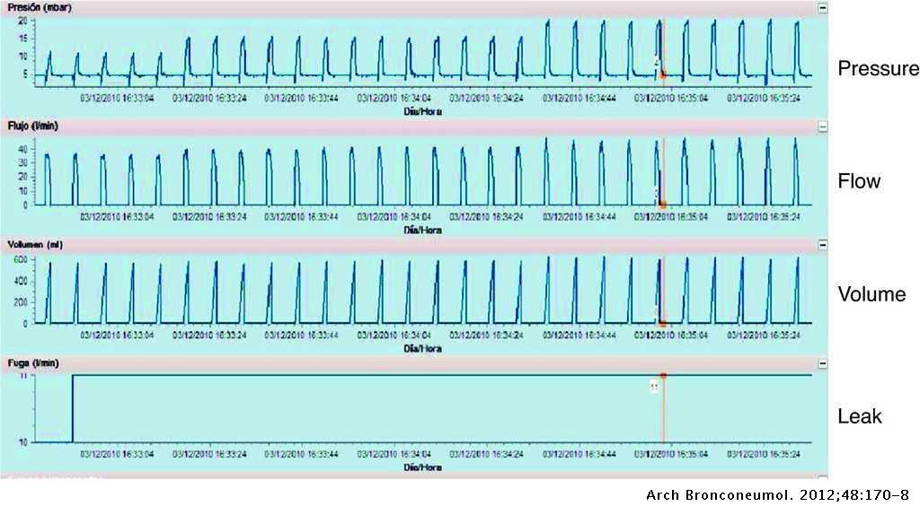 Home Mechanical Ventilation Monitoring Software: Measure