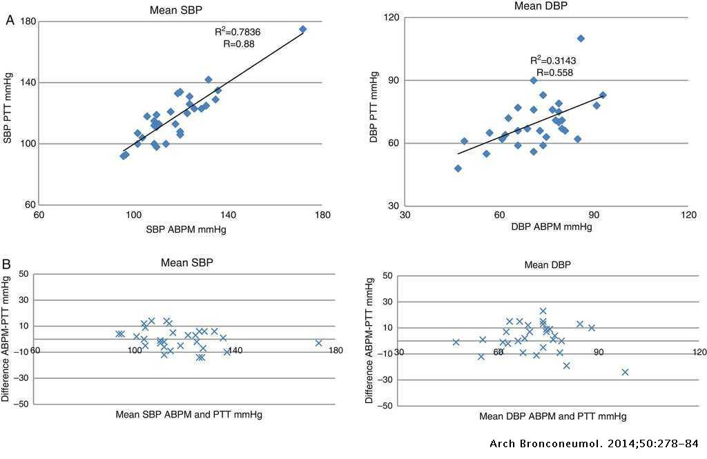 Can Pulse Transit Time Be Useful for Detecting Hypertension