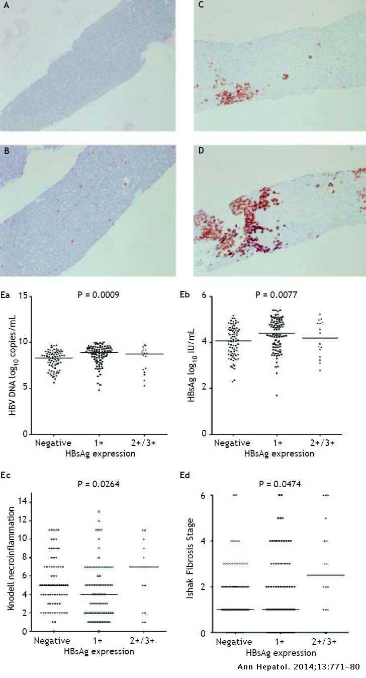 HBsAg Expression Of Liver Correlates With Histological