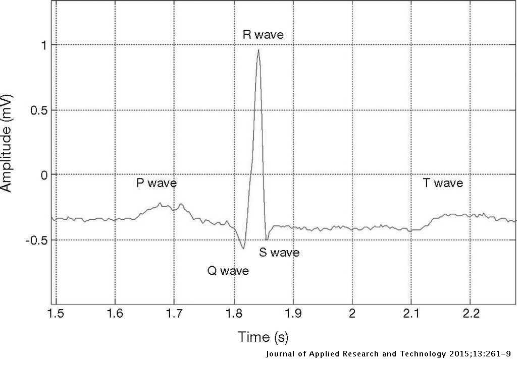 Feature Extraction of Electrocardiogram Signals by Applying