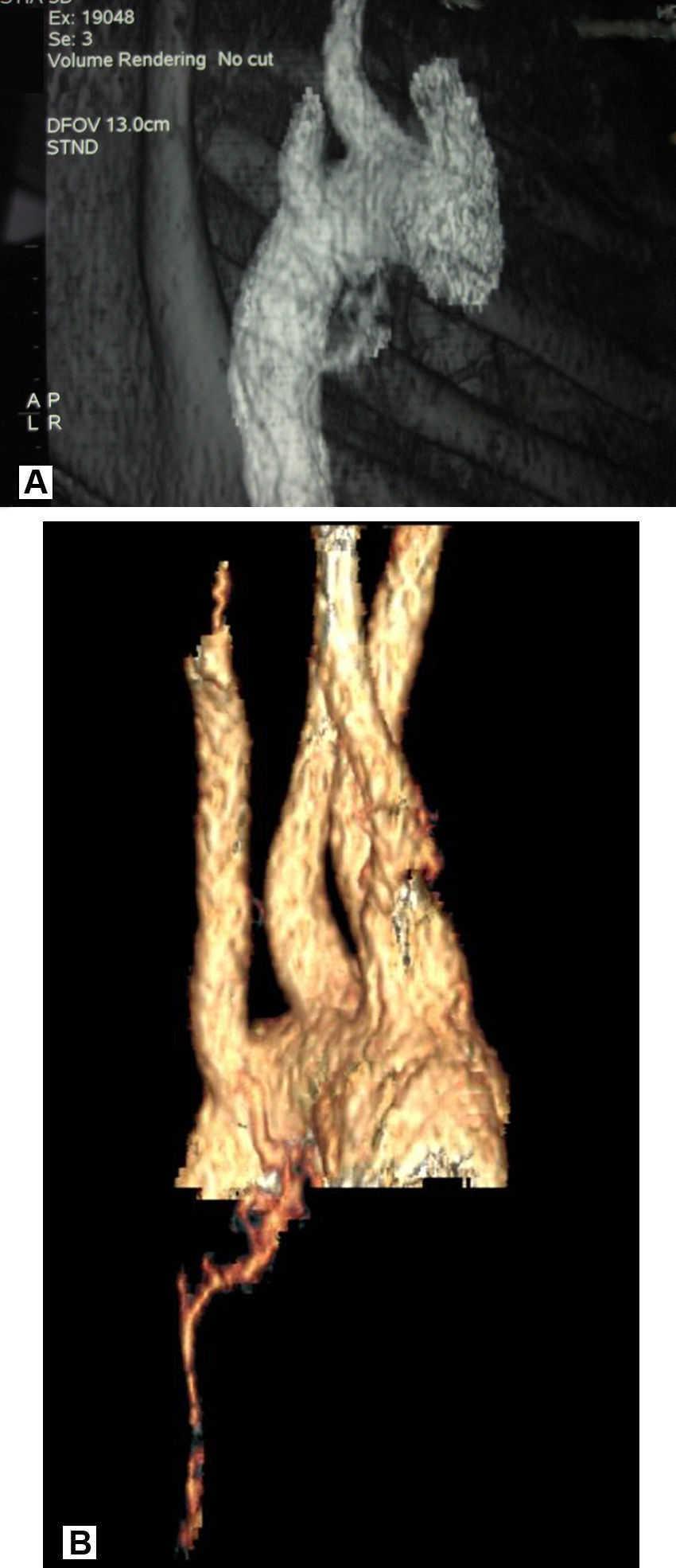 Hemoptisis amenazante y arteria bronquial aberrante   Anales de ...