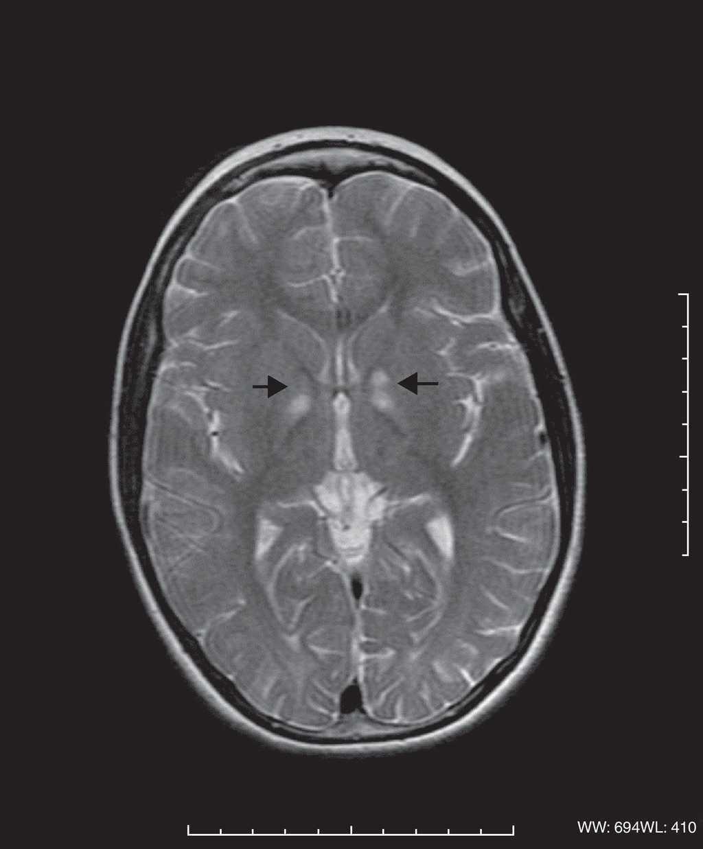 Síndrome de Kearns-Sayre | Anales de Pediatría (English Edition)