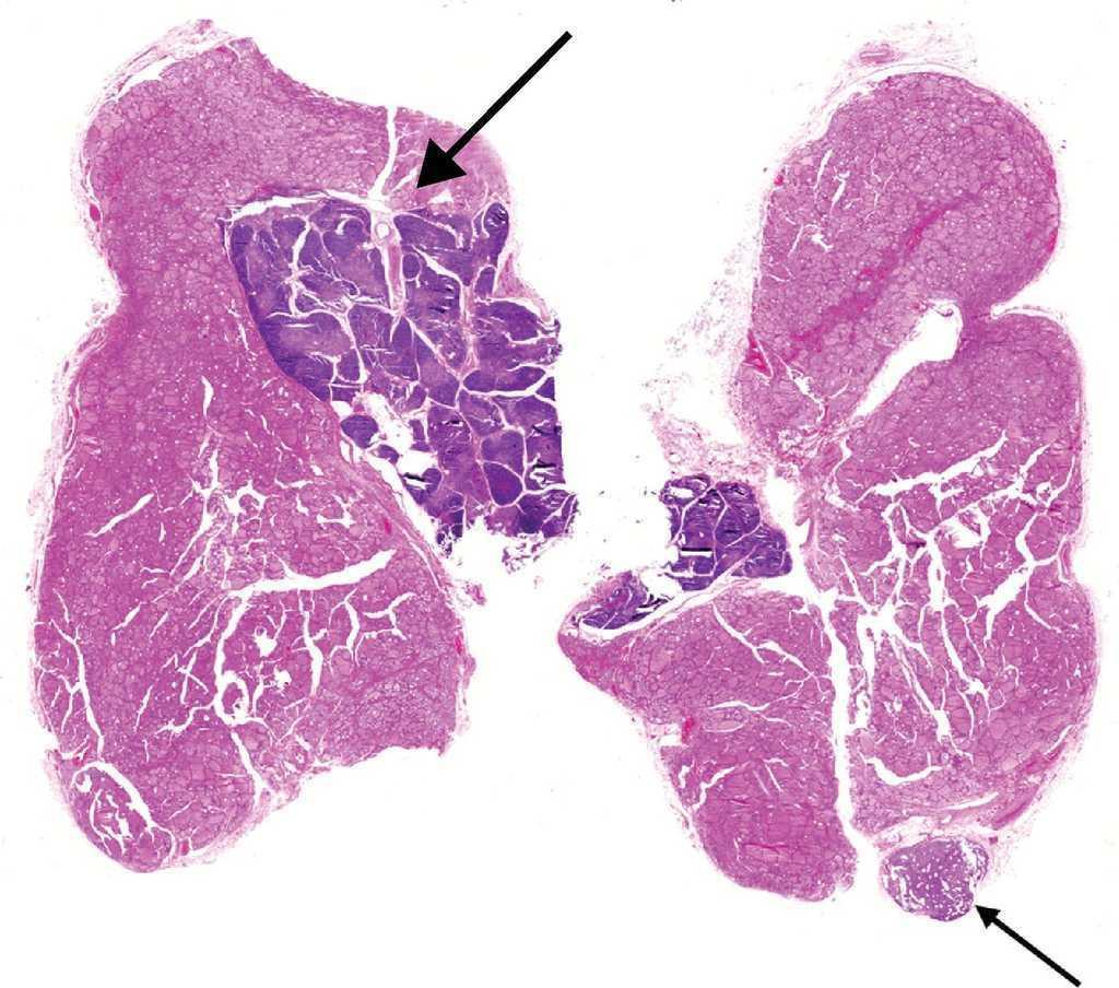 Timo intratiroideo ectópico como causa de nódulo tiroideo solitario ...